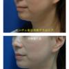 ハリツヤクリスタルリフト(溶ける糸)で顎下・首のリフトアップです。