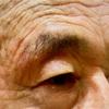 眼瞼下垂も白内障も。