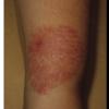 症例:CMAJ 45歳女性 腕が赤い