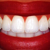 Using in Your Own Home Teeth Whitening For That Sexy, Confident Smile