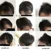 Capillus RXを1年6月の使用で反響のあった日本人の前頭部の回復の時系列画像