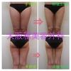 症例写真 大腿と臀部の脂肪吸引👣