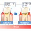 歯周病が全身病の原因! ~歯周病を改善する方法とは!?~