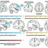 精神障害の神経イメージング研究