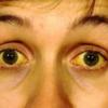 眼球結膜黄疸の感度