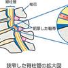 梅宮辰夫さんの病状は「腰部脊柱管狭窄症」の可能性