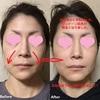 リファカラットでほうれい線と顔のくすみ小じわが消えるたった1回20分の使い方と効果(画像と動画あり)