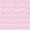 心電図クイズ~AF既往のある患者のwide QRS tachycardia~