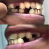 矯正前抜歯(4本)完了