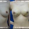 丸く!大きく!綺麗!豊胸手術です。1週間後の経過。