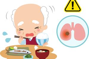 肺炎を引き起こすこともある誤嚥(ごえん)とは