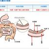 水素水の効果-潰瘍性大腸炎