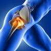 股関節疾患の治療が苦手なあなたへ|一流セラピストの治療推論を体験しよう