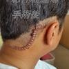聴神経腫瘍の手術後は、体調不良5年も