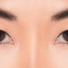 ⭐︎水の森⭐︎ 「失敗しないためのカウンセリング」リアルレポート8-「眼瞼下垂の悩み相談」