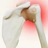 【肩の痛み対策】ゴリゴリ音を解消するための肩甲下筋のトレーニングとストレッチ
