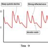 動脈ラインの適応とその意義