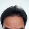 DHI式自毛植毛308日目44週目10ヵ月
