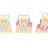 歯周病があるとインフルエンザが重症化する?