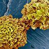 画期的なガン検診:血液検査「CancerSEEK」の威力に世界が注目!  (BBC-Health, January 19, 2018)