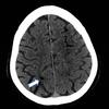 症例54:カテーテルアブレーション治療を受けてから意識障害を発症した59歳男性 (J Emerg Med. 2020 Nov;59(5):e187-e191.)