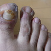 汗疱状湿疹(4)