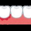 ヘルペス性歯肉口内炎