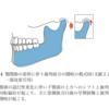 オープンバイトとTMD(顎関節症)ー ノルウェー事情 その2