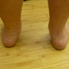 Treating Flat Feet In Adults