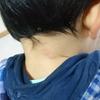 子供の発疹に毎回ビビる