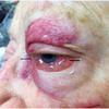 症例96:左眼窩を打撲した82歳女性(J Am Coll Emerg Physicians Open. 2020 Oct 19;1(6):1757-1758.)