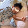 2回目の突発性発疹