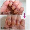 二枚爪とは?原因と治し方・対処法を知り綺麗な爪に蘇ろう!
