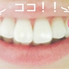 【歯列矯正】両上4番抜歯 2017.11