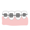 大人の歯列矯正体験記④ 装置をつけるまでが長い すぐにつけられない理由
