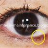 目の粘膜にかかるホクロ(6)除去から3週間後