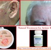 Natural Treatment for Actinic Keratosis by Herbal Products