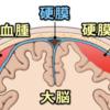 急性硬膜下血腫と硬膜外血腫の違い