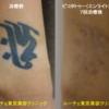 手首黒一色のタトゥーが目立ちにくくなりました