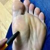 足の親指の付け根辺りが痛むので調べてみたら、どうやら「種子骨炎」らしい