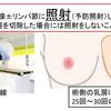 くりこさんの放射線治療