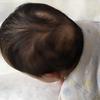 《育児》うしろハゲが懐かしい!息子の髪の毛の歴史(6ヶ月で笑)