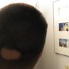円形脱毛症の治療:11度目の受診(最後の受診?)
