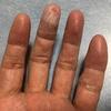 バケットターン練習で指の皮剥けた