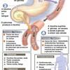 糖尿病という名称の誤解