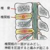 【ラン日記】椎間板ヘルニア…