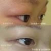 逆さまつげの手術治療 睫毛内反が再発しないコツ 注)手術中の写真あり