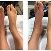 症例101:手術後から疼痛が6週間持続する29歳女性(J Am Coll Emerg Physicians Open. 2021 Jan 21;2(1):e12370.)