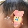 【疾患】6ヶ月の赤ちゃんの耳瘻孔【耳に穴】