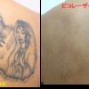 背中上半分の広いタトゥーをピコレーザーで消しています。